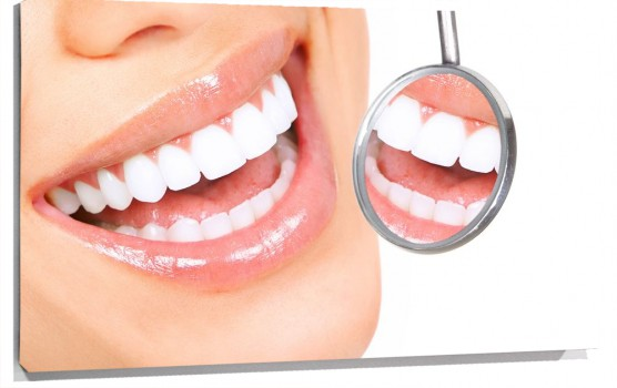 sonrisa_dentista_muralesyvinilos_26921528__Monthly_XL.jpg