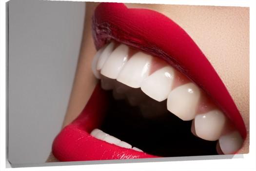 sonrisa_labios_rojos_muralesyvinilos_36672995__Monthly_XL.jpg